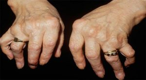 Artrite-sieronegative