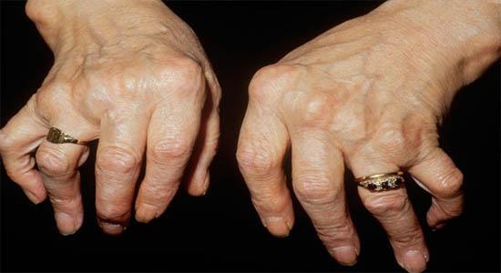 Artrite sieronegative