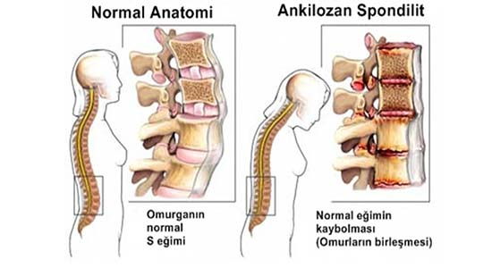 Artrosi lombare